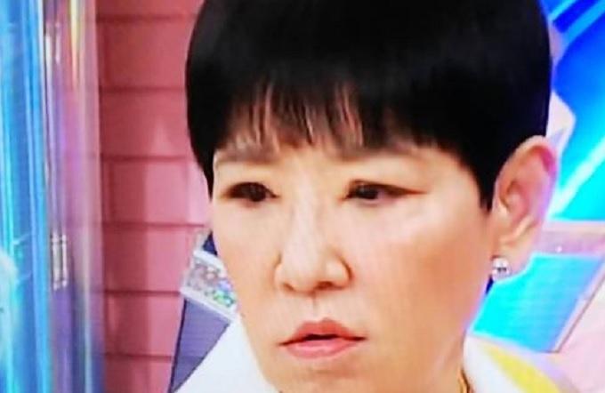 和田アキ子の目 手術後の画像